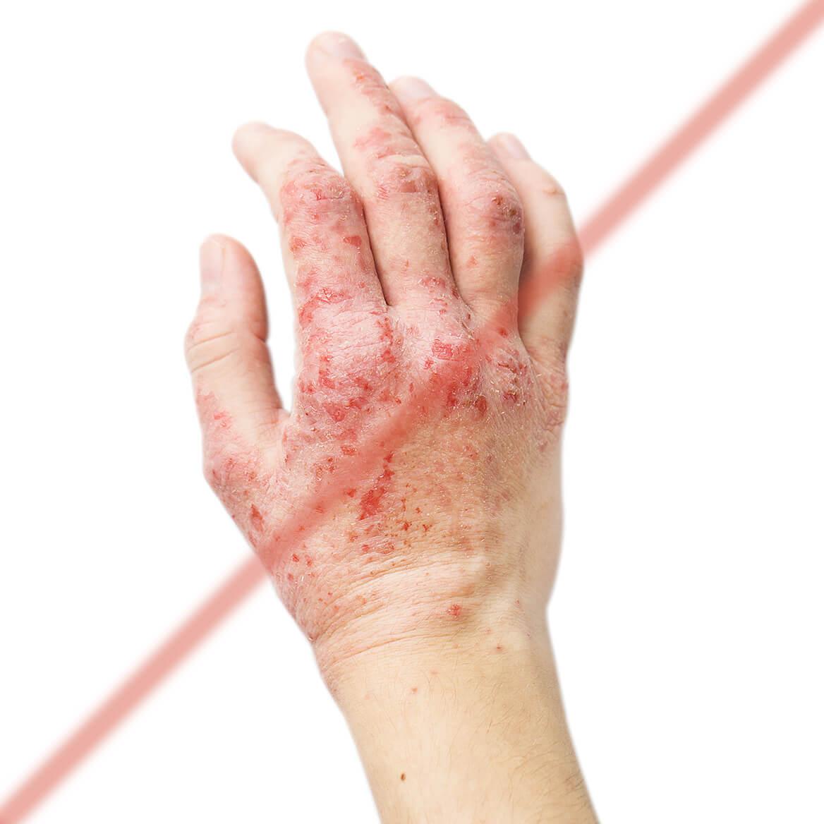 Eczema Care-369733