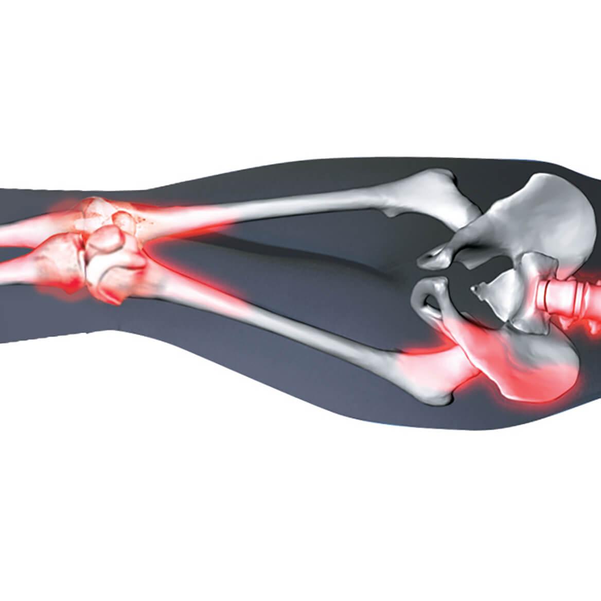 Cooling Spine Align Leg Pillow-369844
